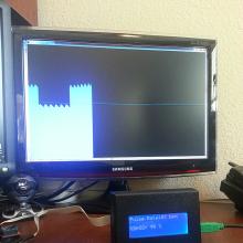 Wireless Pulse Oximeter