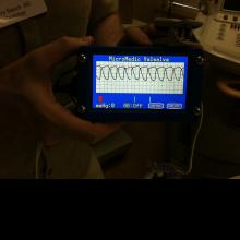 VTD (Valsalva Test Device)